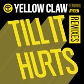 Till It Hurts (feat. Ayden) [Remixes] - EP