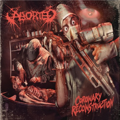 Coronary Reconstruction - EP - Aborted