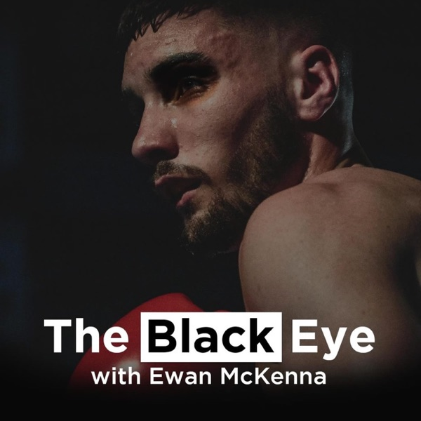 The Black Eye