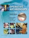 Operative Arthroscopy Fourth Edition