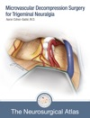 Microvascular Decompression Surgery For Trigeminal Neuralgia
