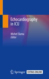 Echocardiography in ICU