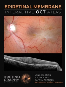 EPIRETINAL MEMBRANE - INTERACTIVE OCT ATLAS Book Cover