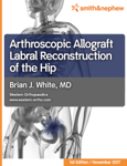 Arthroscopic Allograft Labral Reconstruction