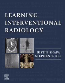 Learning Interventional Radiology eBook