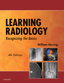 Learning Radiology