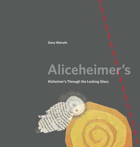 Aliceheimer's