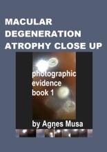 Macular Degeneration Atrophy Close Up, Photographic Evidence Book 1