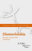 Dismorfofobia