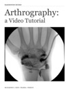 Arthrography A Video Tutorial Enhanced Version