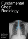 Fundamental Chest Radiology