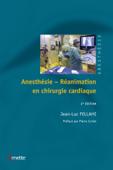 Anesthésie-réanimation en chirurgie cardiaque