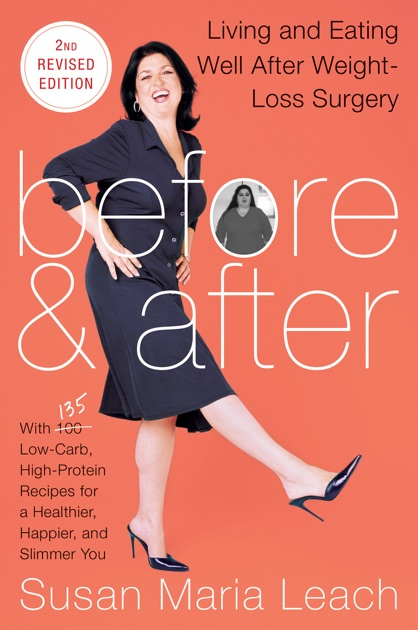 Before & After, Second Revised Edition by Susan Maria ...