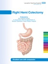 Right Hemi Colectomy