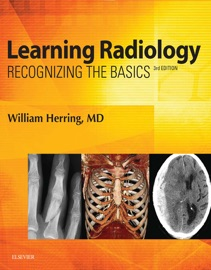 Learning Radiology E-Book - William Herring MD, FACR