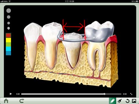 Dental iClinic lite - náhled