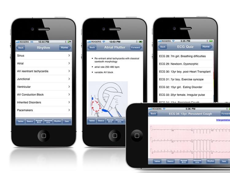 Paedcard ECG screenshot-4