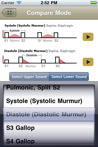 Heart Sound Challenge