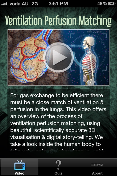 Ventilation Perfusion Matching