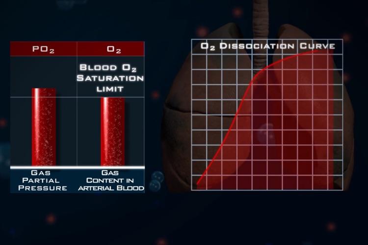Ventilation Perfusion Matching screenshot-3