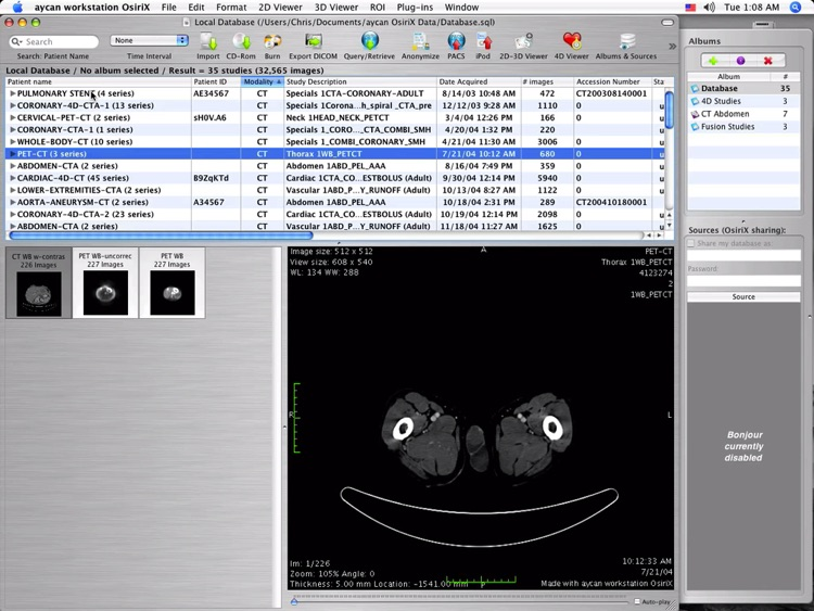 OsiriX PRO Video Tutorials