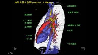 e画像解剖のおすすめ画像2