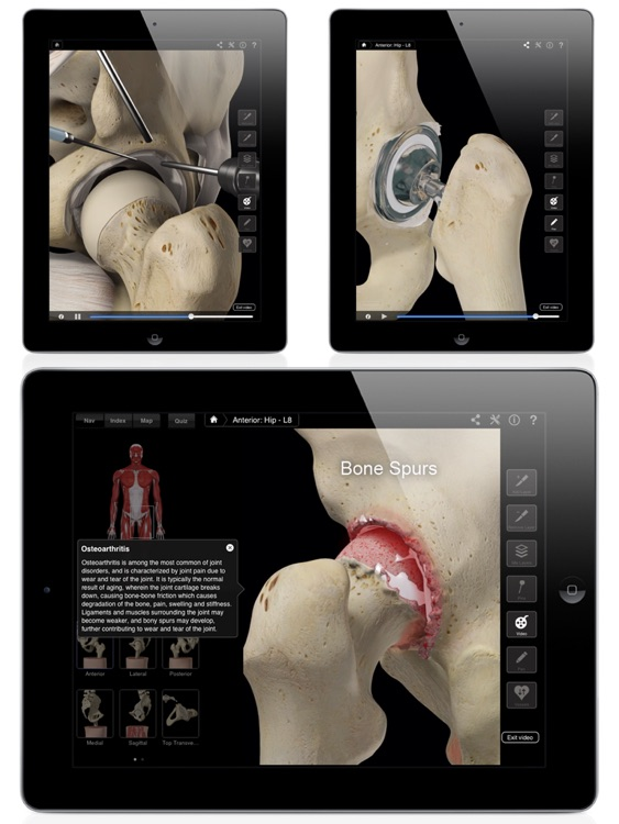 Hip Pro III for iPad screenshot-1