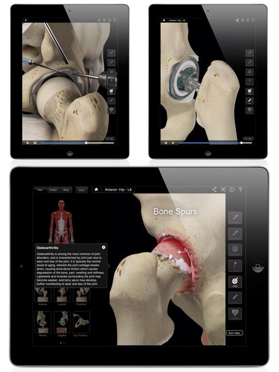 Hip Pro III for iPad