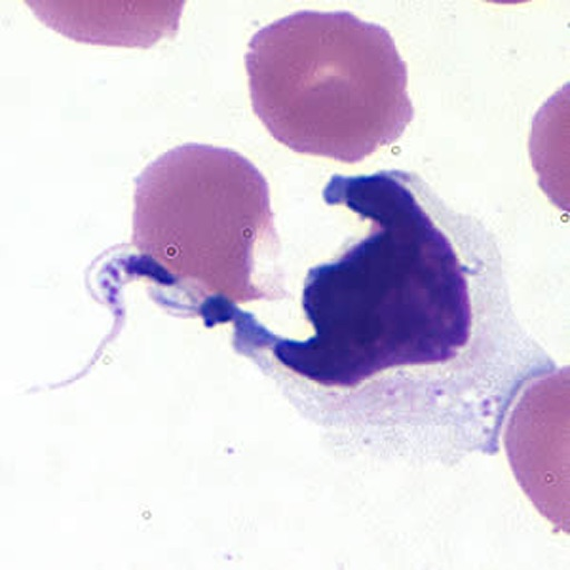 Histology Images - Blood-borne Parasites