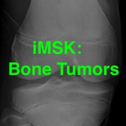 iMSK Bone Tumors