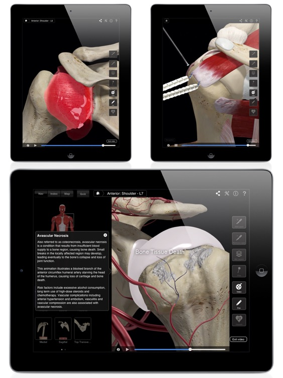 Shoulder Pro III for iPad