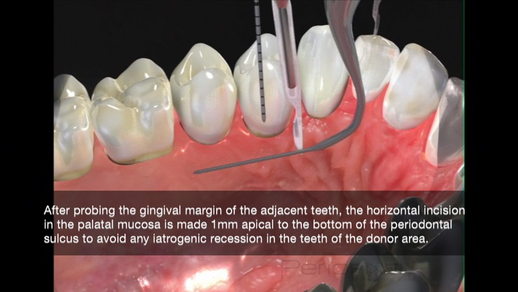 Periodontal Advanced Surgery By Mariano Sanz screenshot-3