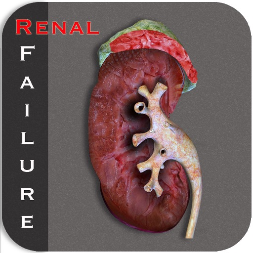 Renal Failure II