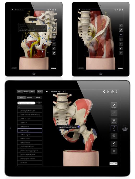 Hip Pro III for iPad screenshot-3