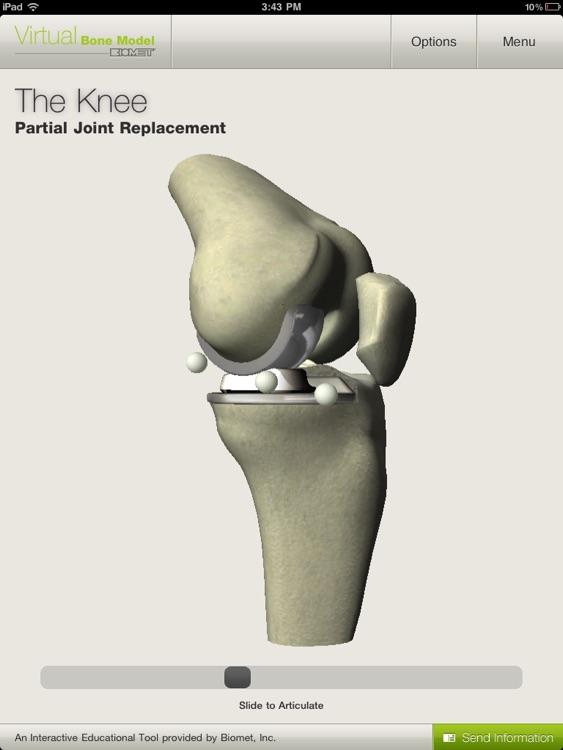 Biomet Virtual Bone Model screenshot-3