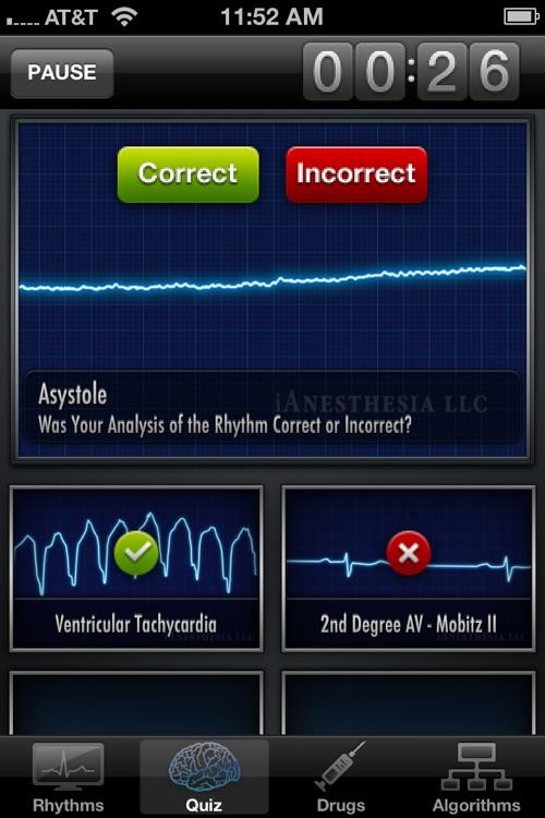 ACLS Rhythms - Resuscitation Guidelines & ECG Advisor screenshot-4
