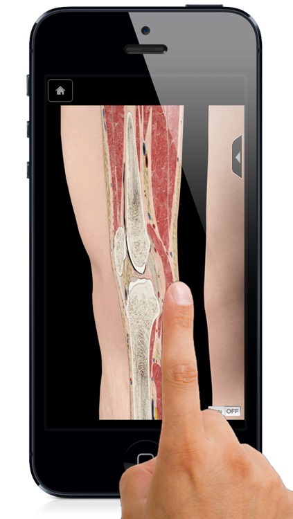 Knee Pro III with Animations - iPhone Edition