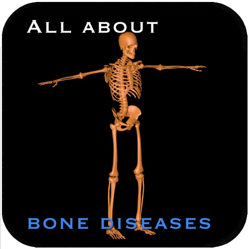 All About Bone Diseases
