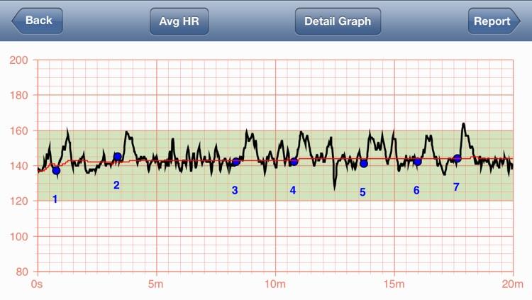 Fetal Heart Rate Monitor