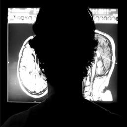 Brain MRI Atlas