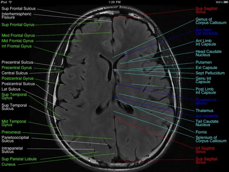 Brain MRI Atlas screenshot-3