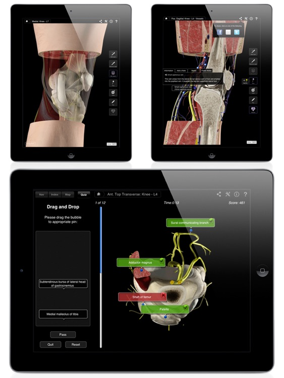 Knee Pro III for iPad screenshot-4