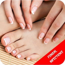 Fungal Infections - Suggested Treatment