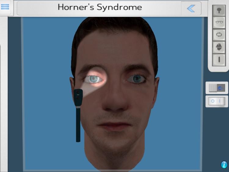 NeuroOphthal screenshot-3