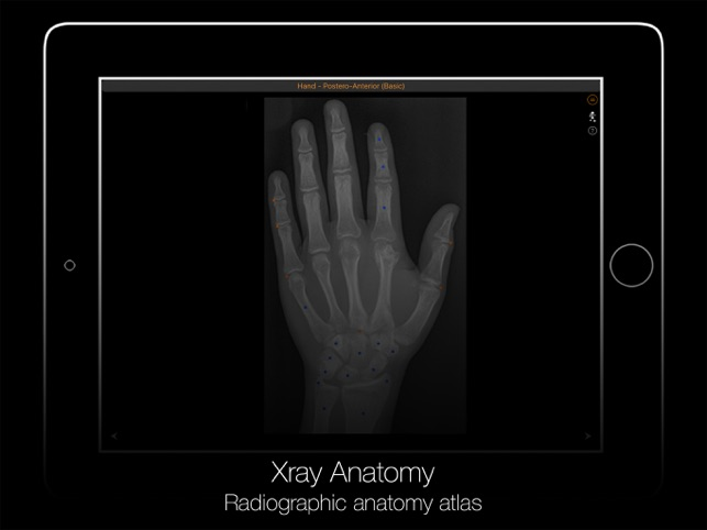 Xray Anatomy on the App Store