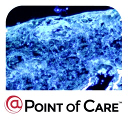 Skin Cancer @Point of Care™