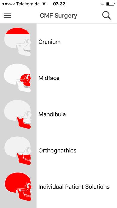 KLS Martin CMF Implants screenshot one