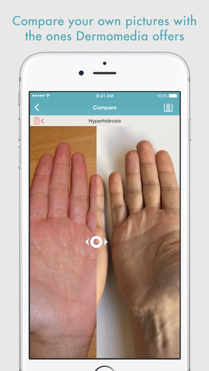 DermoMedia - Education in dermatology screenshot-3