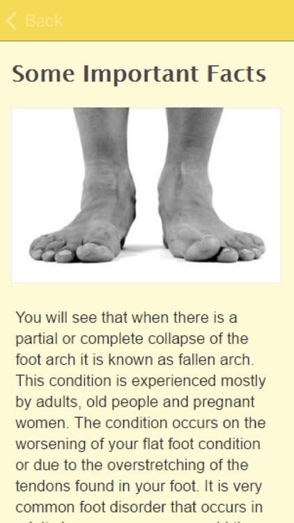 Symptoms Of Fallen Arches