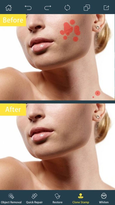 Photo Retouch- Blemish Remover på PC